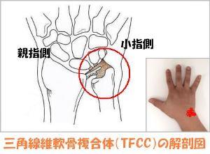 TFCC画像