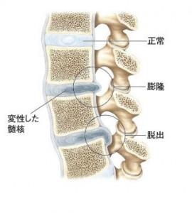 頸椎ヘルニア画像